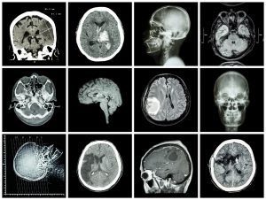 CT Scan and MRI